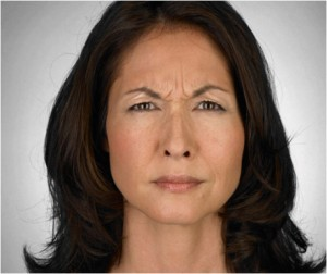 cosmetic-fillers-new-york-dr-marc-epstein-md