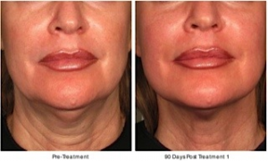 face-and-neck-lift-ultherapy-ny-marc-epstein-md